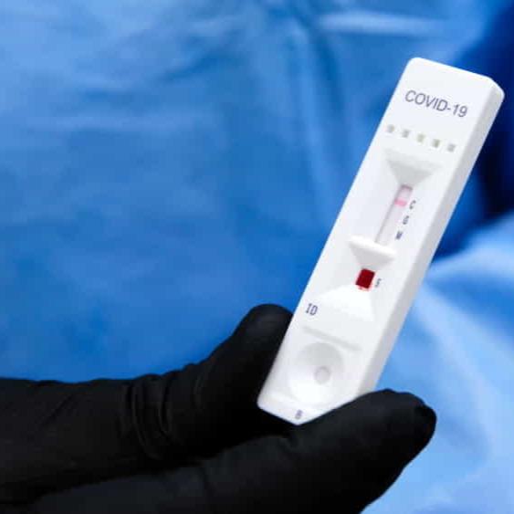 """Ištyrimas greitaisiais serologiniais testais """"AMP Rapid Test SARS-CoV-2 IgG/IgM""""  Anykščių rajono savivaldybėje!"""